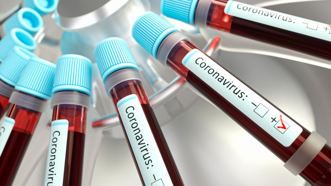 coranavirus